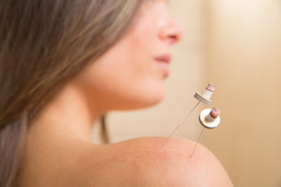 moxibustion or moxa treatment