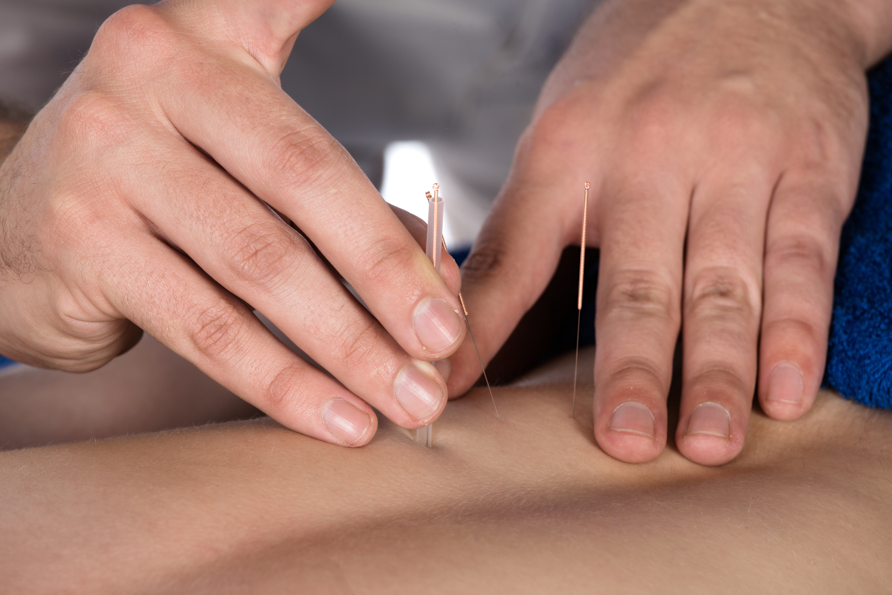 acupuncture treatment - needle placement