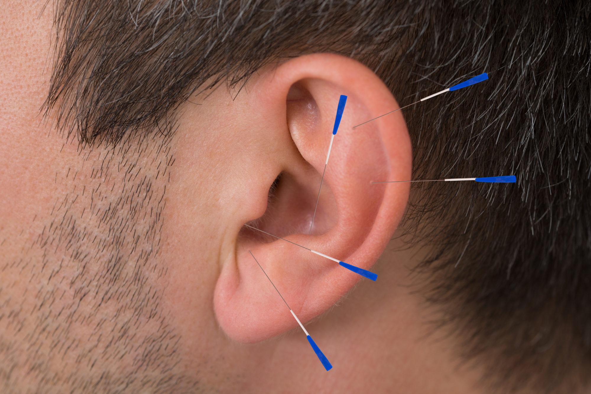 fertility acupuncture treatment for men