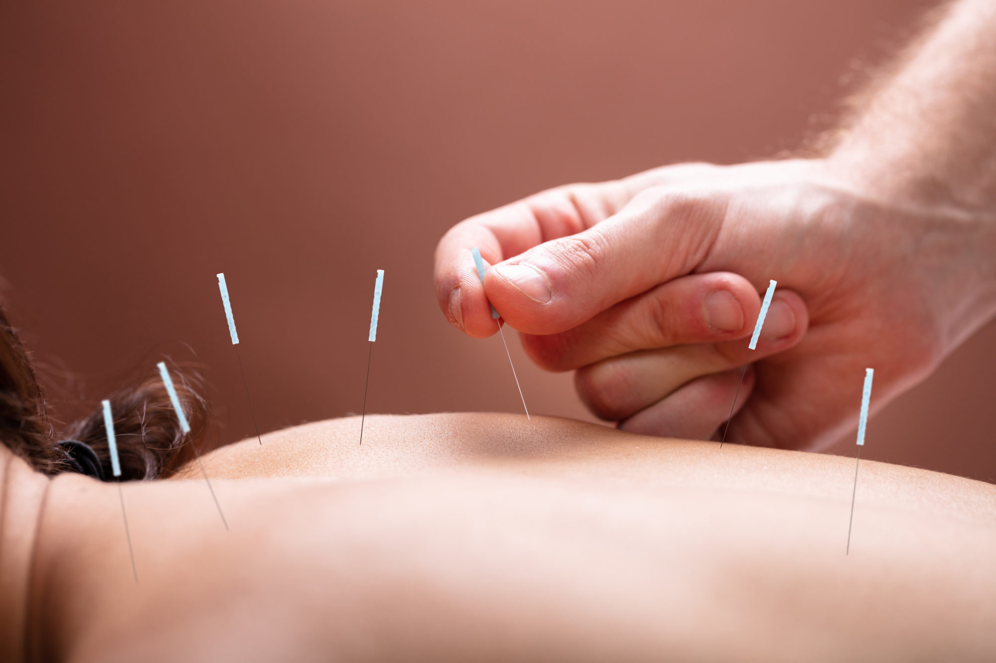 acupuncture on back
